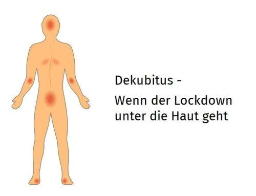 Dekubitus – Wenn der Lockdown unter die Haut geht